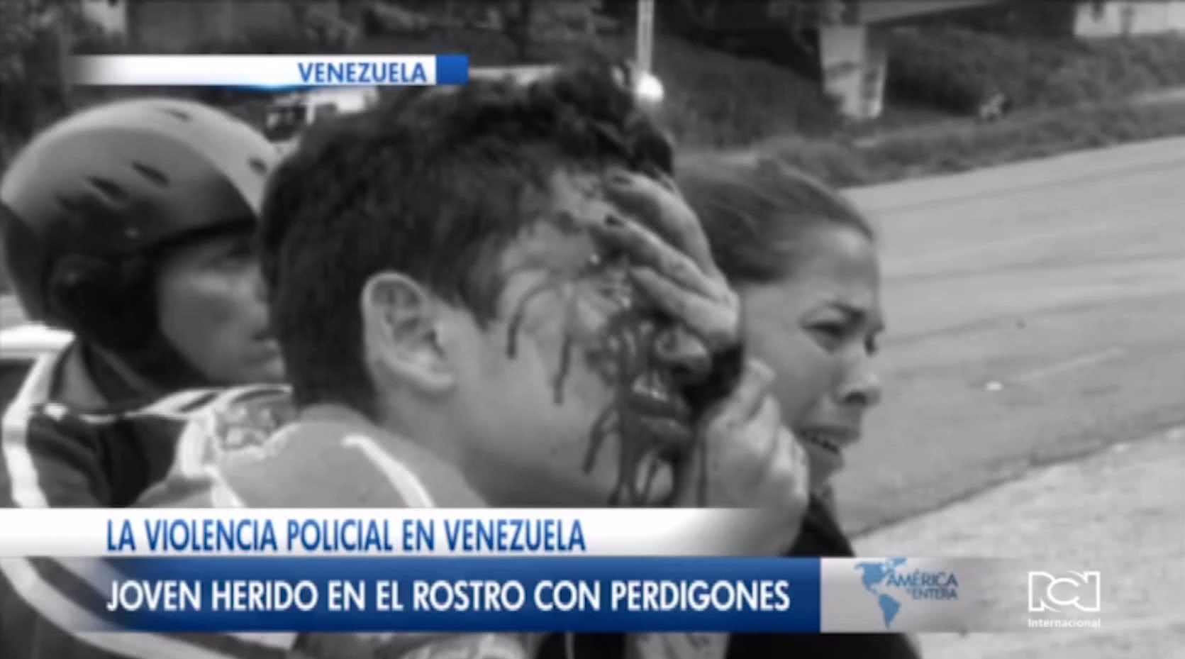 joven-queda-ciego-tras-ser-atacado-por-un-policia-en-venezuela.jpg