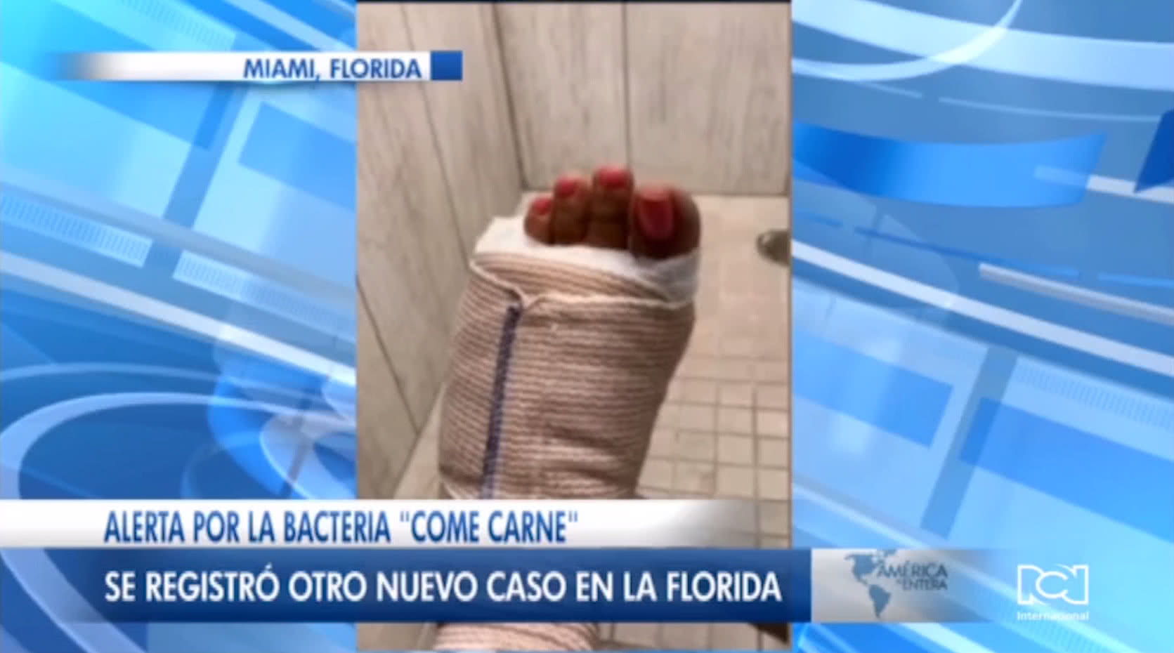 Bacteria come carne en Florida