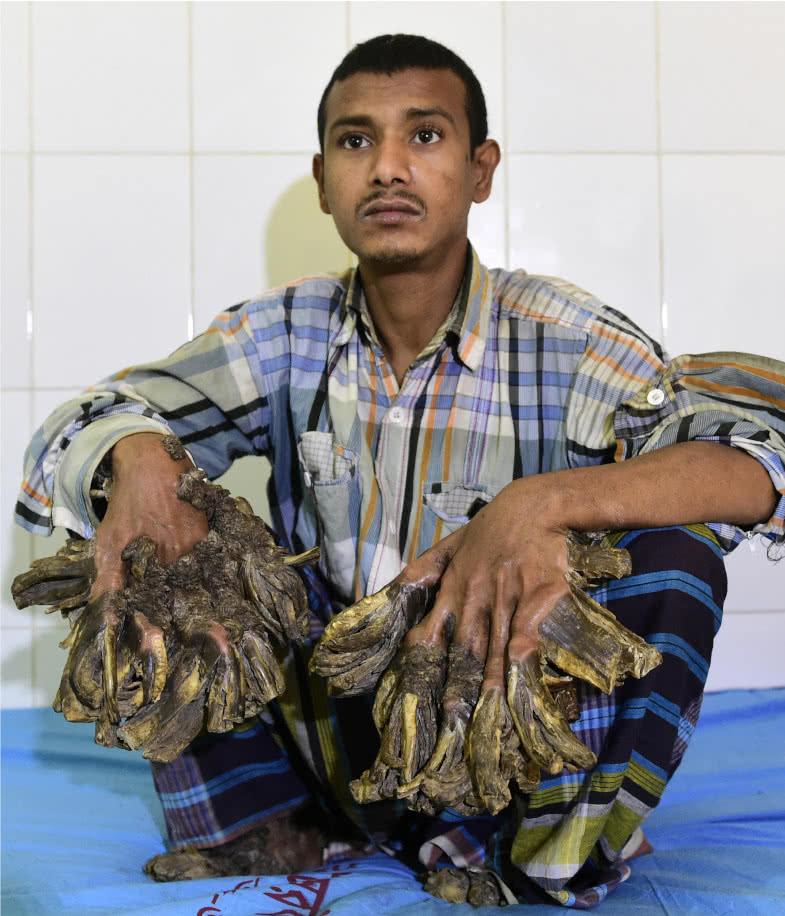 Tras más de 20 cirugías y cansado del dolor, 'el hombre árbol' pide que le corten las manos