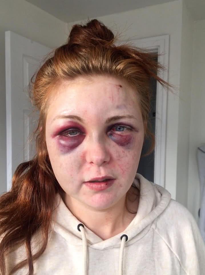 Para evitar que su exnovio salga de la cárcel mujer publica las fotos de la golpiza que le propinó