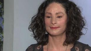 Natalia Ponce de León es símbolo de la lucha contra los ataques con ácido. Foto: NoticiasRCN.com