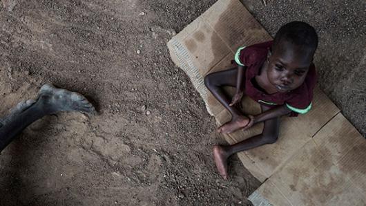 Sudán del Sur: la crisis humanitaria se ceba con los niños