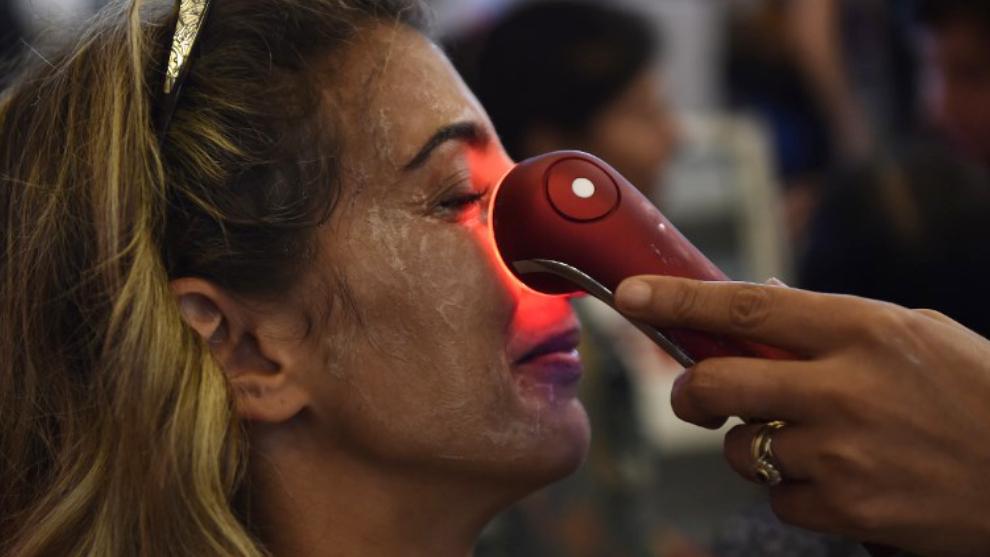 Consejos para evitar el acné