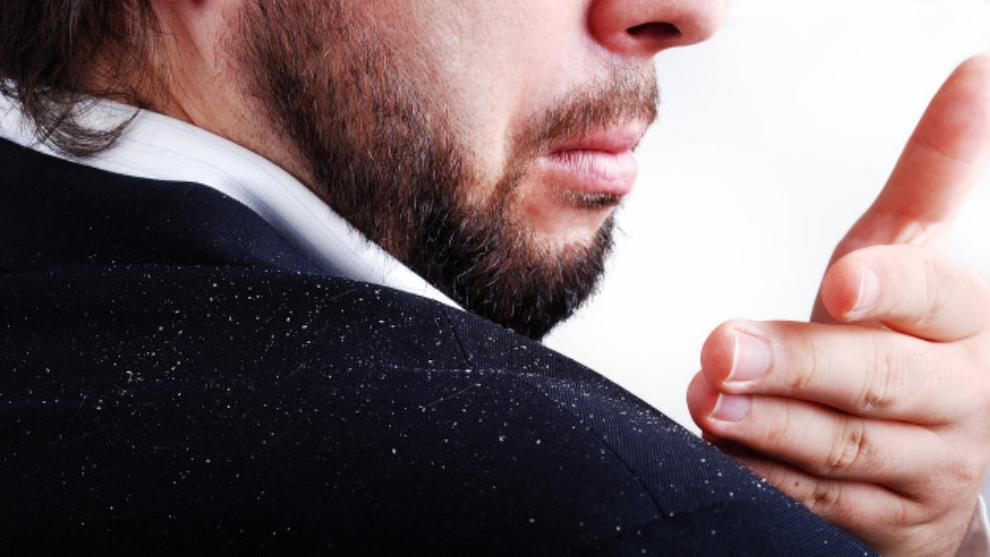 Caspa: mitos y verdades y cómo eliminarla