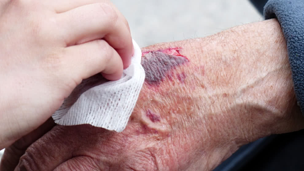 Accidentes caseros más comunes y cómo prevenirlos