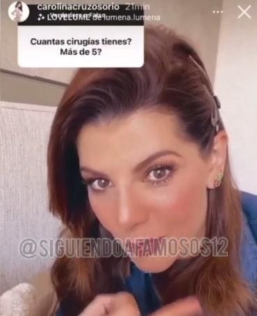 Carolina Cruz Cirugias busto 2
