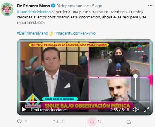 Juan Pablo Medina amputación pierna 2