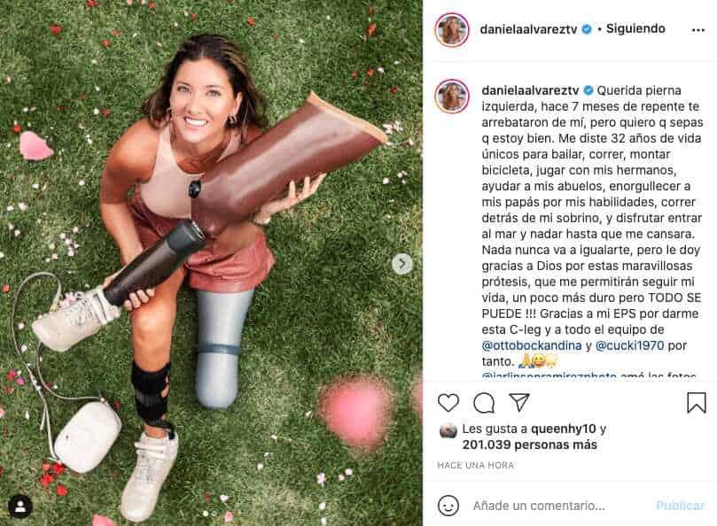 Daniella Álvarez dedica emotiva carta a su pierna izquierda