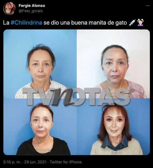 Por unas fotos, aseguran que La Chilindrina habría quedado irreconocible tras cirugía en su rostro
