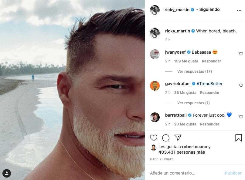 Luce irreconocible, Ricky Martin transforma parte de su rostro