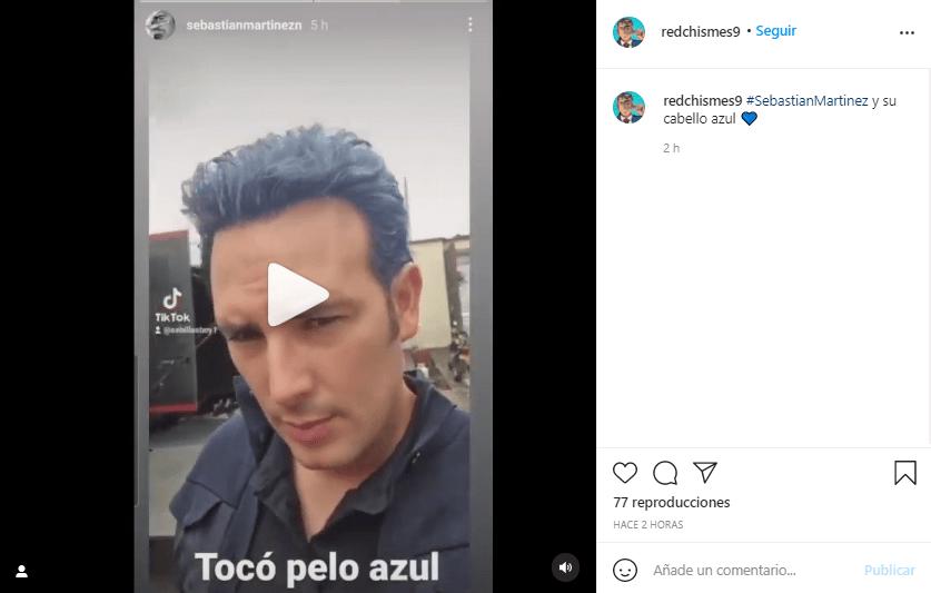 Sebastian Martinez cabello azul